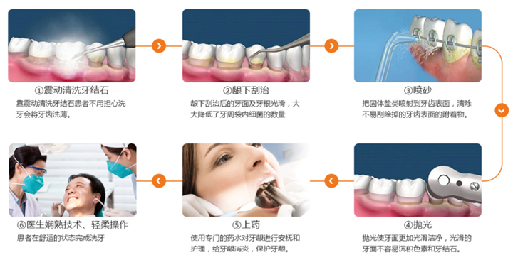 超声波洁牙,全方位护理你的牙齿!