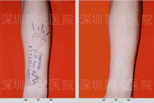 洗纹身——美国redlite c8激光